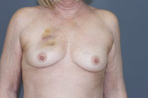 Before Breast Reconstruction | Scottsdale, AZ