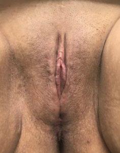 Labiaplasty - 3 Months Post Op