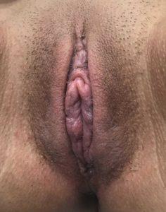 Labiaplasty - 3 Weeks Post Op