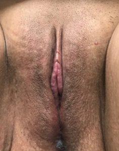 Labiaplasty - 6 Weeks Post Op