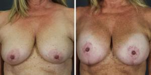Breast lift in Scottsdale AZ | Mastopexy Scottsdale AZ